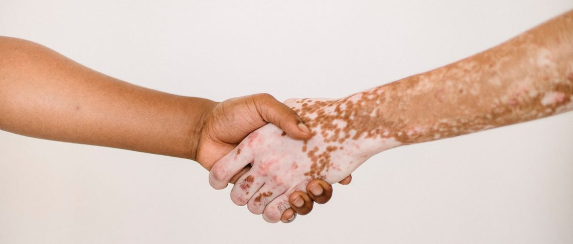 COVID Vaccination and Vitiligo- Will the vaccine work as well?